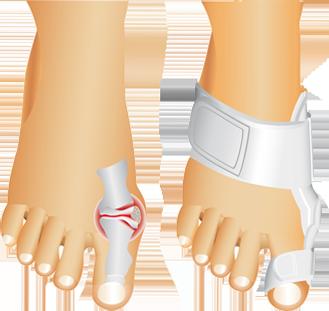 poze Corector ortopedic pentru deget Active Toe Support
